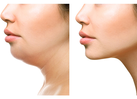 Double Chin Reduction Surgery